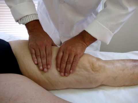 Drenagem linfática manual  - linfedema pernas