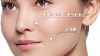 How To Prevent Dark Spots | Behind the Brand Equitance