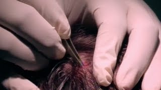 getlinkyoutube.com-Massive Head Splinter - Bizarre ER