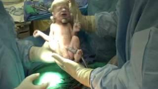 getlinkyoutube.com-Audrey & Abigail's Birth (Twins C-Section)