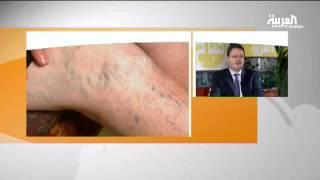 getlinkyoutube.com-أسباب دوالي الساقين وسبل علاجها