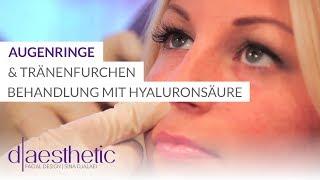 getlinkyoutube.com-Behandlung von Augenringe und Tränenfurchen mit Hyaluronsäure by d-aesthetic in Köln