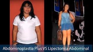 ABDOMINOPLASTIA PLUS VS LIPECTOMÍA ABDOMINAL TUMMY TUCK CIRUGÍA PLÁSTICA DCORPUS CALI COLOMBIA