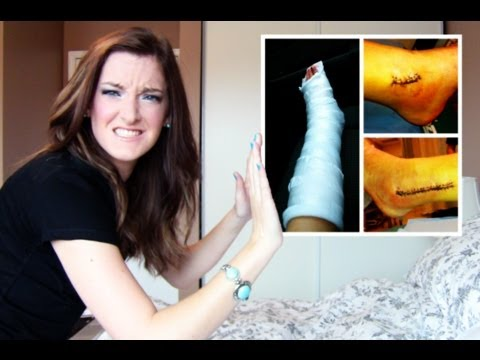 The FULL Story of My Broken Ankle (VIDEOS + PHOTOS | DormRoomDivas
