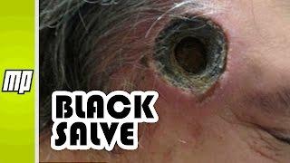 getlinkyoutube.com-Black Salve - Cancer 'Treatment' That Burns Holes in You!