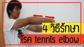 4 วิธี รักษาอาการปวดข้อศอก จากโรค tennis elbow