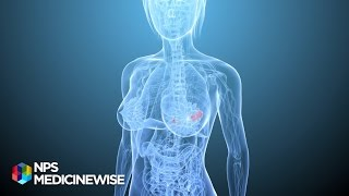 getlinkyoutube.com-Breast tenderness and  hormone replacement therapy (HRT) - from Tonic TV