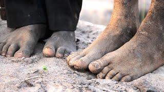 getlinkyoutube.com-Un día en el lugar más pobre del mundo (Kadula, Sudán del Sur)