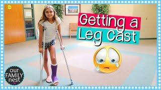 GETTING A LEG CAST FOR BROKEN FOOT   DANCE INJURY