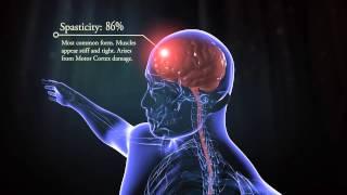 getlinkyoutube.com-Types of cerebral palsy