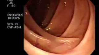 getlinkyoutube.com-Паразиты в организме человека: симптомы,признаки,лечение,профилактика глистов,очищение от паразитов