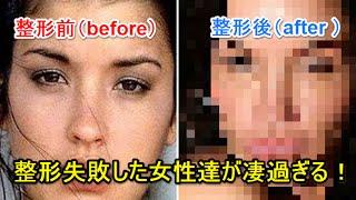 "getlinkyoutube.com-【閲覧注意】史上最強の整形手術""失敗例""40連発"