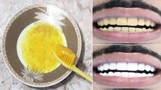 صدق او لا تصدق! ستبيض أسنانك خلال 5 دقائق فقط وتزيل رائحة الفم مضمونة وغير مكلفة وطبيعية وفعالة %100