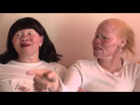 Albinism in South Africa
