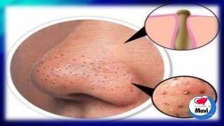 getlinkyoutube.com-7 Mascarillas caseras para la cara puntos negros o espinillas - Tratamientos caseros para el rostro