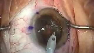 getlinkyoutube.com-Modern Cataract Surgery: Alcon ReSTOR IOL with LRI
