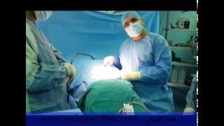 عملية الديسك - الغضروف - الإنزلاق بالتداخل المحدود