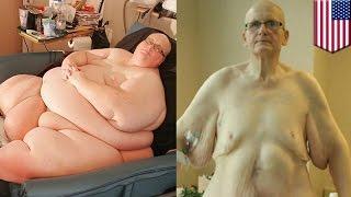 Były najgrubszy człowiek świata traci 27 kilogramów...skóry