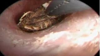 getlinkyoutube.com-Giant Centipede Found Inside Chinese Woman's Ear
