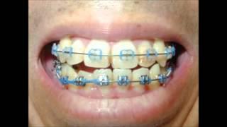 getlinkyoutube.com-歯列矯正の記録 Teeth-straightening