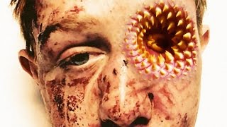 getlinkyoutube.com-Trypophobia Eye 2016