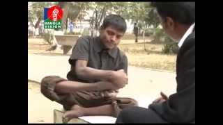 getlinkyoutube.com-তিনি একজন ভিক্ষুক মাসিক আয় ৪০ হাজার টাকা, বেনসন ছাড়া খান না কোন সিগারেট