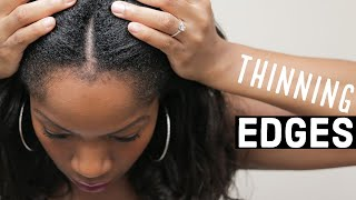 Growing Back THINNING EDGES | 5 SIMPLE TIPS