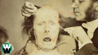 getlinkyoutube.com-10 CREEPIEST Vintage Medical Practices From The Past!
