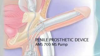 getlinkyoutube.com-Erectile Dysfunction, Penile Prosthesis and Prostate Cancer