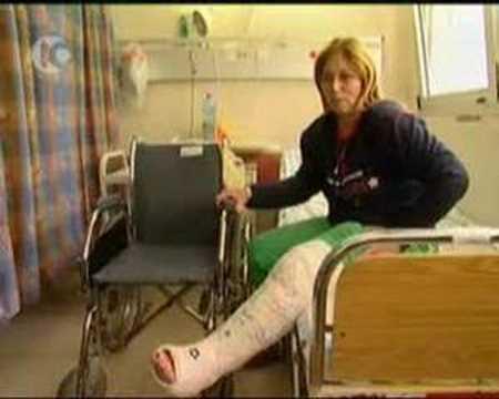 Long leg cast in jude hospital