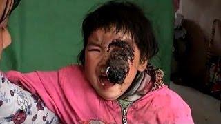getlinkyoutube.com-中国内陸の貧困浮き彫りに 雲南のがん幼児逝く