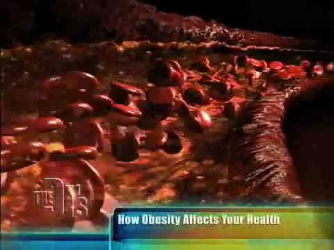 How Obesity Affects Your Health-The Doctors