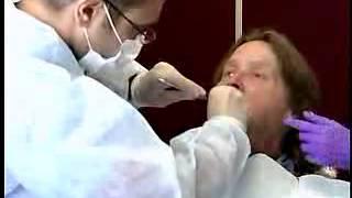 getlinkyoutube.com-Complete Denture Procedure ; 02 Mandibular Preliminary Impression