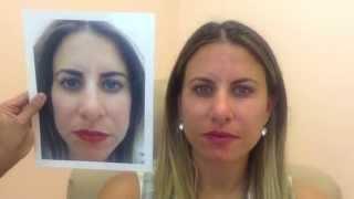 getlinkyoutube.com-Voluma Before & After