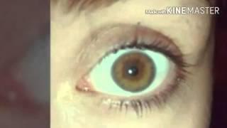 getlinkyoutube.com-Resultados biokinesis