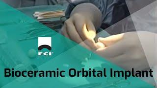 getlinkyoutube.com-Bioceramic Orbital Implants - Dr. David Jordan