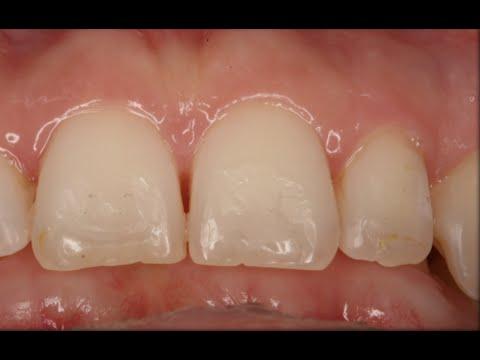 Sobremordida Extrema: ¡me muerdo el paladar con los dientes inferiores!