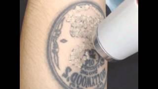 getlinkyoutube.com-Aron Ashab Menghapus Tatto Dengan Laser