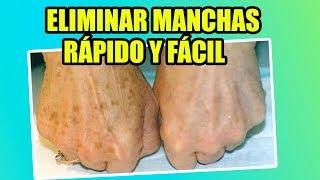 getlinkyoutube.com-Cómo Quitar Las Manchas De Las Manos - Yasmany