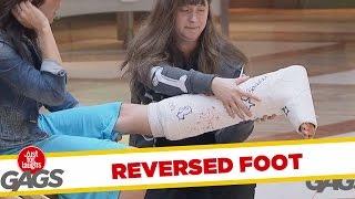 Reversed Broken Leg Prank