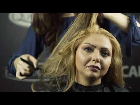 saçkıran özel quantum sistem çözümü protez saç