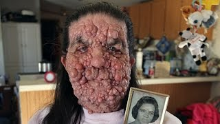 getlinkyoutube.com-Bubble Gran, Woman Covered In Benign Tumours: Body Bizarre Episode 5