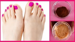 How to Remove Sun Tan From Feet    Feet Whitening Spa Pedicure At Home