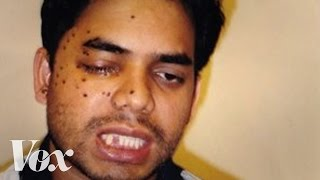 getlinkyoutube.com-This Muslim American was shot after 9/11. Then he fought to save his attacker's life
