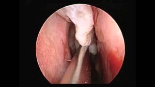getlinkyoutube.com-Endoscopic Shaving of Nasal Polyps