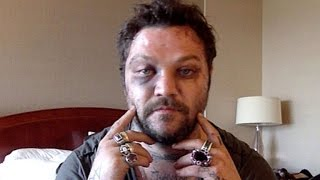 getlinkyoutube.com-Bam Margera Shares Brutal Injury Photos After Attack by Icelandic Rappers