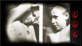 getlinkyoutube.com-Josef Mengele y sus aterradores experimentos