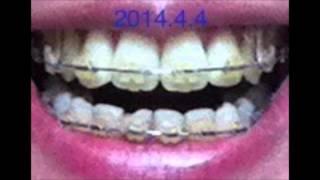 getlinkyoutube.com-【パラパラ歯列矯正】1,137日を5分で【正面編】