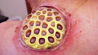 Lotus Pod Cyst!  Trypophobia Immersion Therapy, Part Two