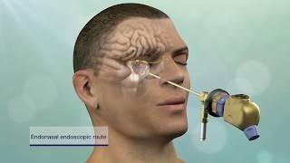 getlinkyoutube.com-Keyhole Brain Tumor and Skull-Base Surgery